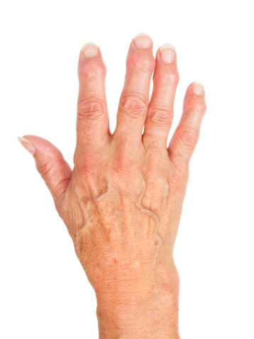 How to Treat Hand Arthritis